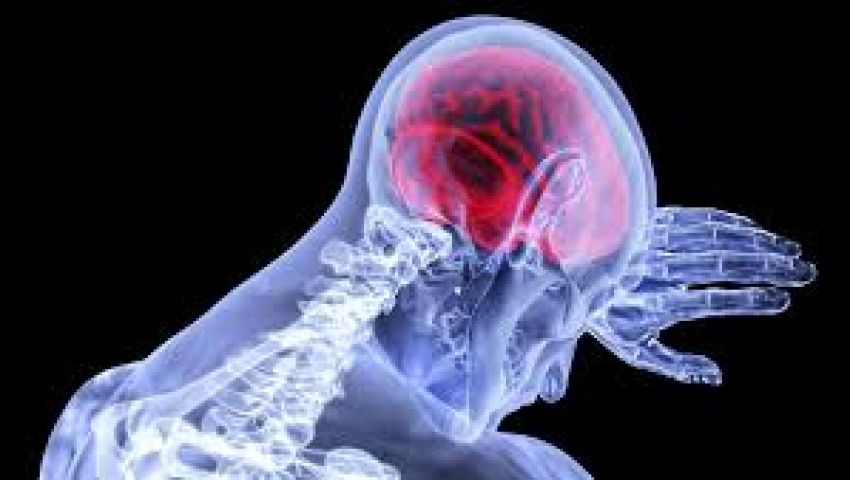 في اليوم العالمي للسكتة الدماغية.. معلومات وحقائق مثيرة