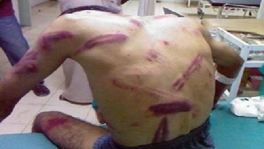 محام حقوقي: الصحفي صبري أنور تعرض للتعذيب بقسم دمياط