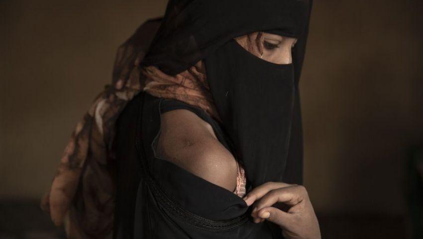أسوشيتدبرس: بالنسبة للمهاجرين غير الشرعيين.. اليمن كابوس يخشاه الأفارقة