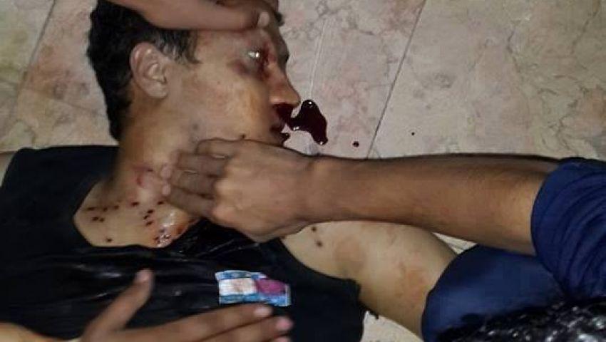بالصور..قتيل اشتباكات المدينة الجامعية بالأزهر