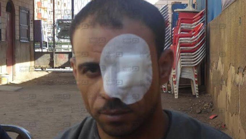 مواطن يتهم الشرطة بتعذيبه: الضابط ضربني بالكرباج على عيني