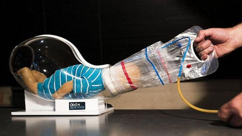 ميكانيكي يخترع جهازًا للولادات العسيرة