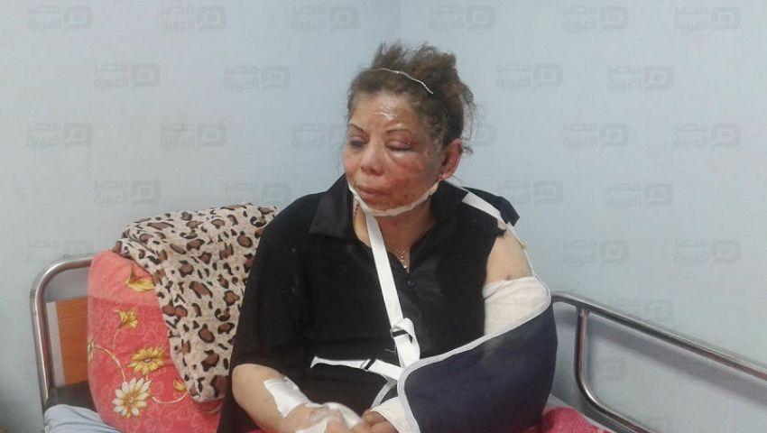 بالصور| مصابة بانفجار كنيسة مارجرجس:البوابات الإلكترونية لم تكن مفعَّلة