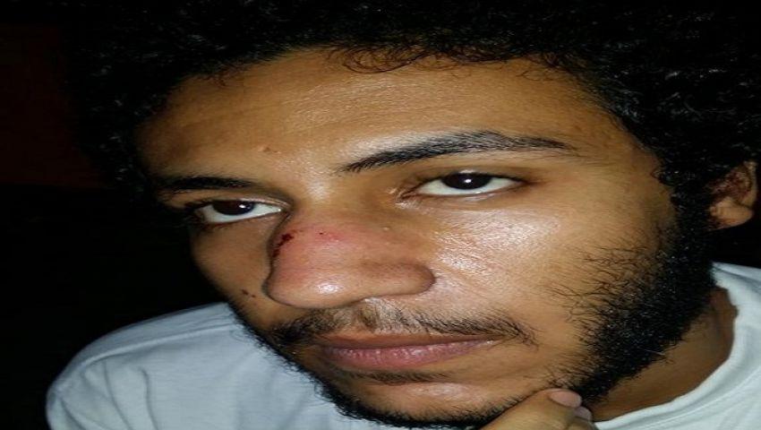 حقوقية تؤكد الاعتداء على صحفي في قسم العطارين بالإسكندرية