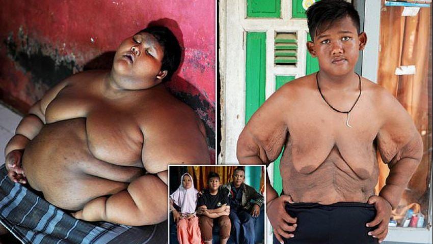 بالفيديو| هكذا فقد أسمن طفل في العالم 106 كيلو جرامات من وزنه