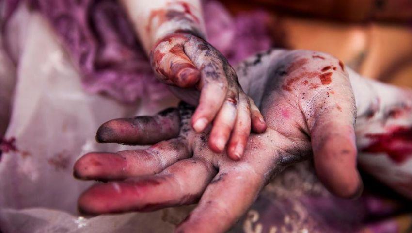 «أنقذوا الأطفال»: 300 طفل يموتون يومياً بسبب النزاعات حول العالم