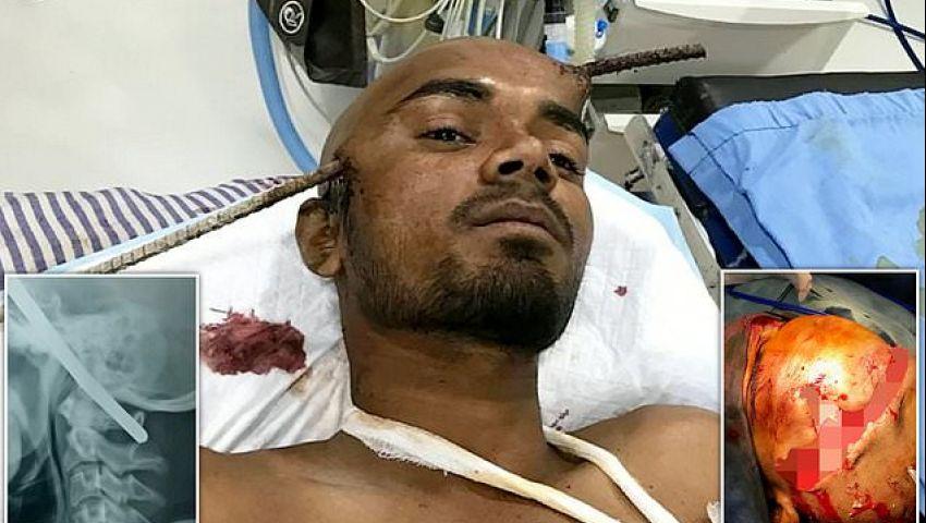 بالصور| هندي ينجو من الموت بأعجوبة بعد اختراق قضيب حديدي رأسه