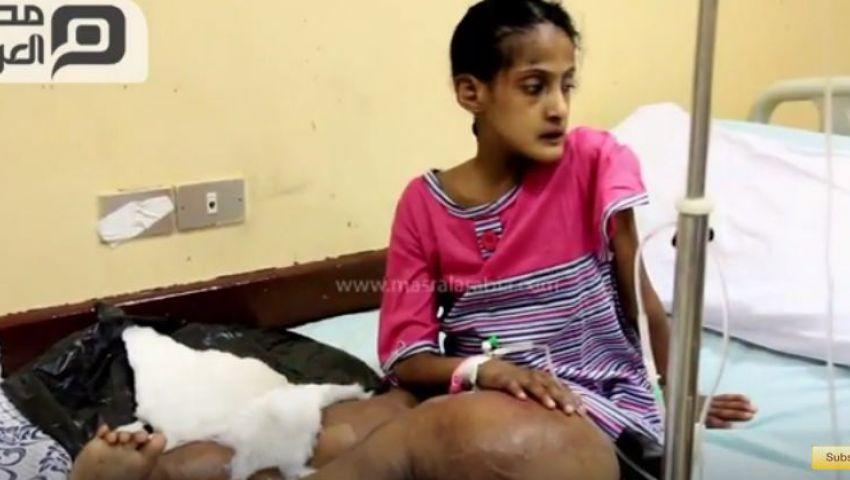 بالفيديو | شهد.. طفلة بلا عظام