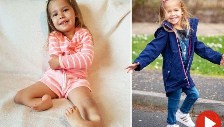 بالصور  جراحة تنقذ طفلة من مرض يصيب واحدا في المليون