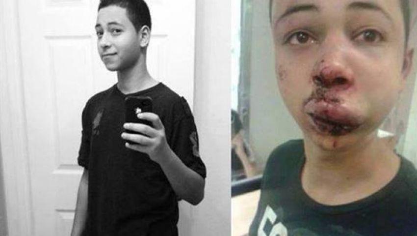 واشنطن تدين اعتداء جنود إسرائيليين على مواطن أمريكي