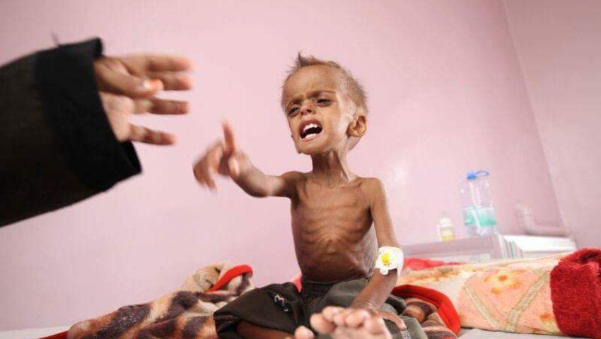 هل أعاد التحالف العربي «الأمل» لأطفال اليمن؟