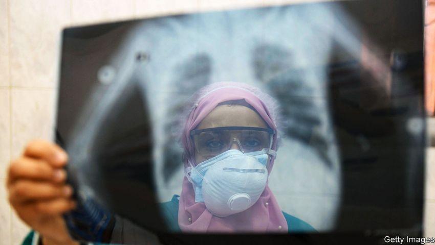 إيكونوميست: هجرة الأطباء نزيف يضاعف «أوجاع» العرب