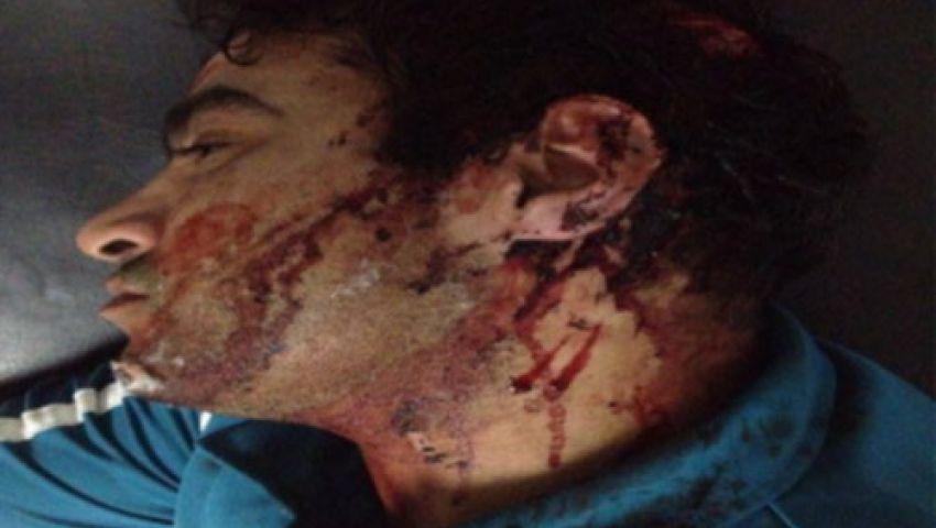 بالصور.. تفاصيل الاعتداء على ضابط شرطة بالشرقية