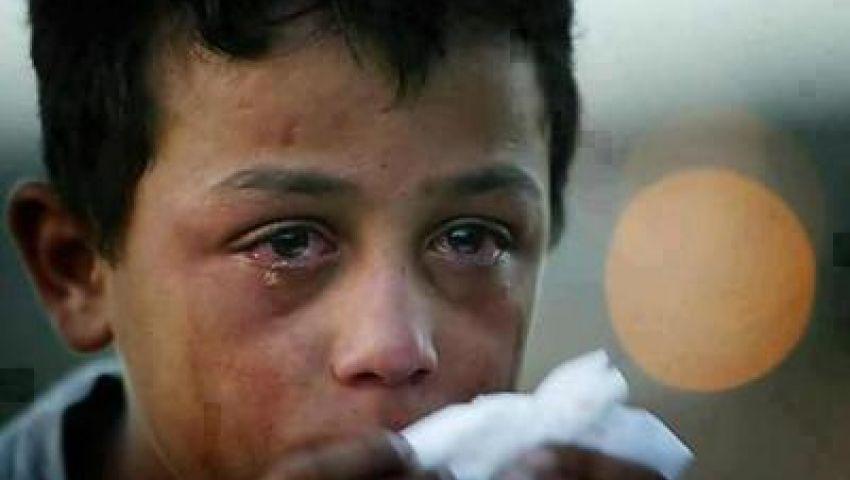 إصابة 3 آلاف بسوريا بأمراض عصبية