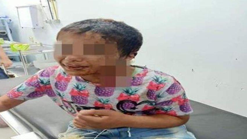 بعد سكب الزيت المغلي على جسدها.. تفاصيل تحقيقات تعذيب الطفلة أمنية