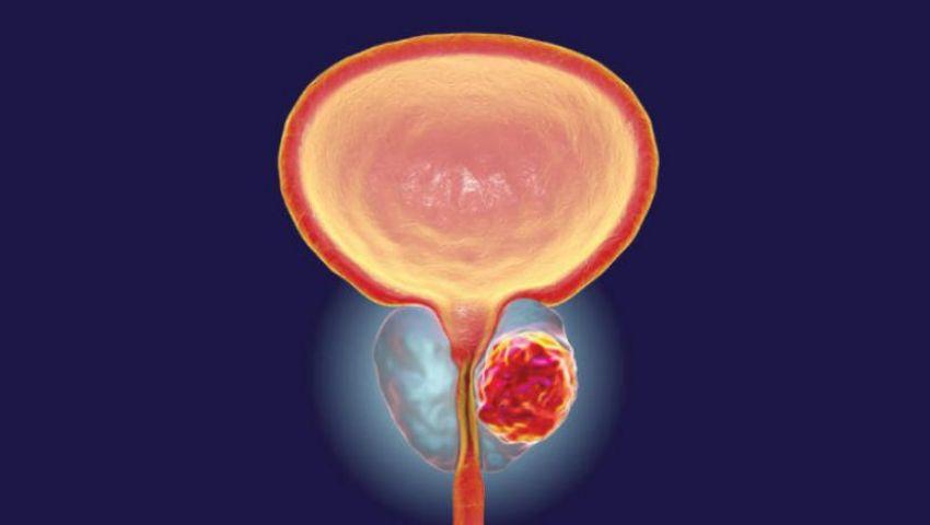 عقار جديد يثبت فاعليته في علاج سرطان البروستاتا