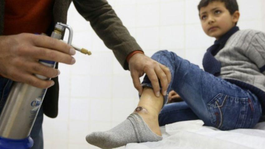 «اللشمانيا».. ما هو الوباء الذي يفتك بأجساد أطفال ليبيا؟