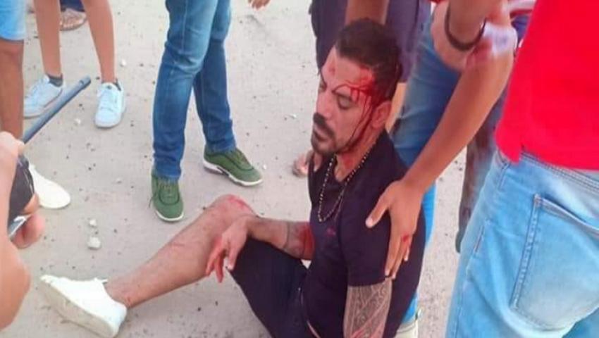 فيديو| آخرهم عمرو زكي.. أبرز اللاعبين الذين تعرضوا لحوادث سير