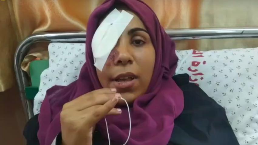 مي أبو رويضة.. شجاعة فلسطينية فقدت عينها برصاص الاحتلال