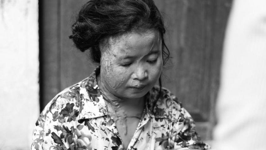 كمبوديا| «رايتس ووتش»: الناجون من هجمات «الأسيد» بحاجة للعلاج والعدالة