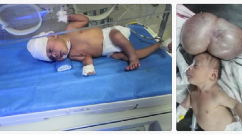صورة| ملحمة طبية.. أطباء سوهاج الجامعي يستأصلون ورم يزن 5 كيلو من رأس مولود
